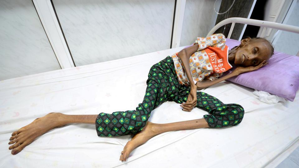 Saida Ahmed Baghili, 18, lies on a bed at the al-Thawra hospital in Yemen on October 24, 2016. Saida is now barely recognisable a year on from the photo of her emaciated frame that came to symbolize the country's humanitarian crisis. (Abduljabbar Zeyad / REUTERS)