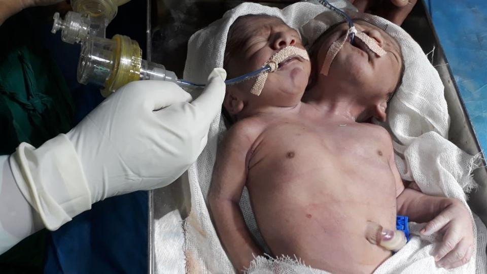 Conjoined twins with two heads and one torso die a day after birth