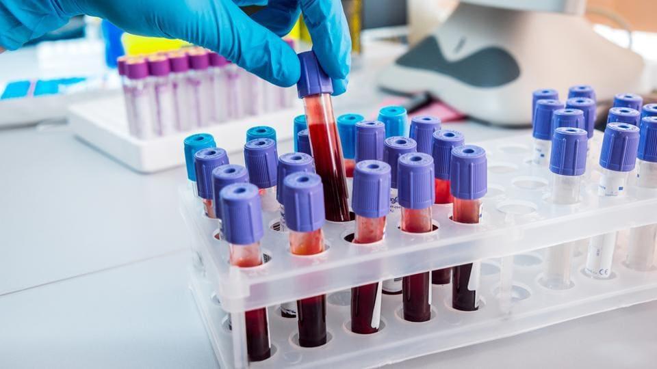 Blood groups,RhD factor,Blood protiens