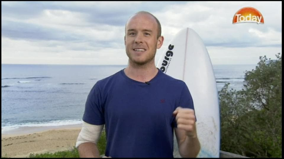 Surfer Charlie Fry is interviewed as he talks about being attacked by a shark at Avoca Beach, Australia.