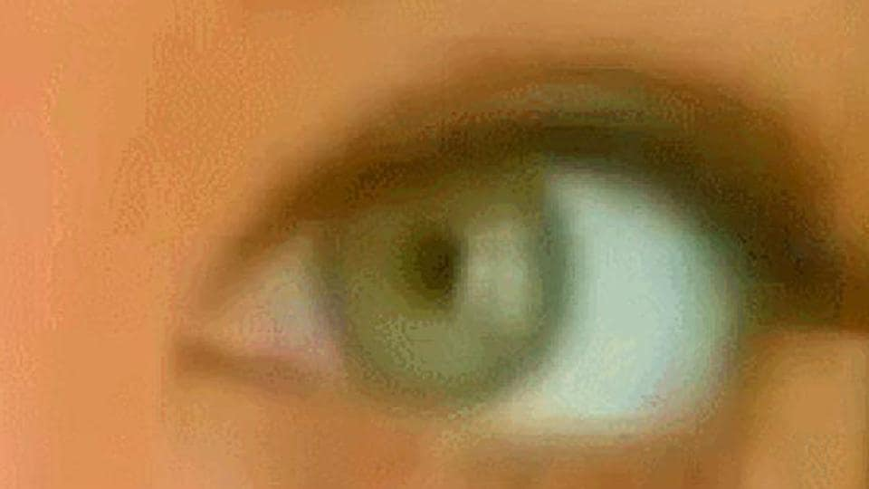 Rajasthan,Eye donation,COrnea