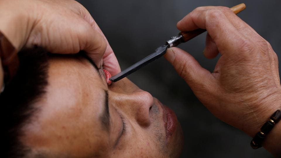 "Xiong Gaowu, cleans a customer's eye using his traditional technique. While customers insist their eyes felt better after a shave, onlookers cringe at the sight of Xiong wielding a razor so close to the eye. ""I am afraid to do it,"" said He Yiting, 27, who winced as she watched Xiong attend to a customer. (Tyrone Siu / REUTERS)"