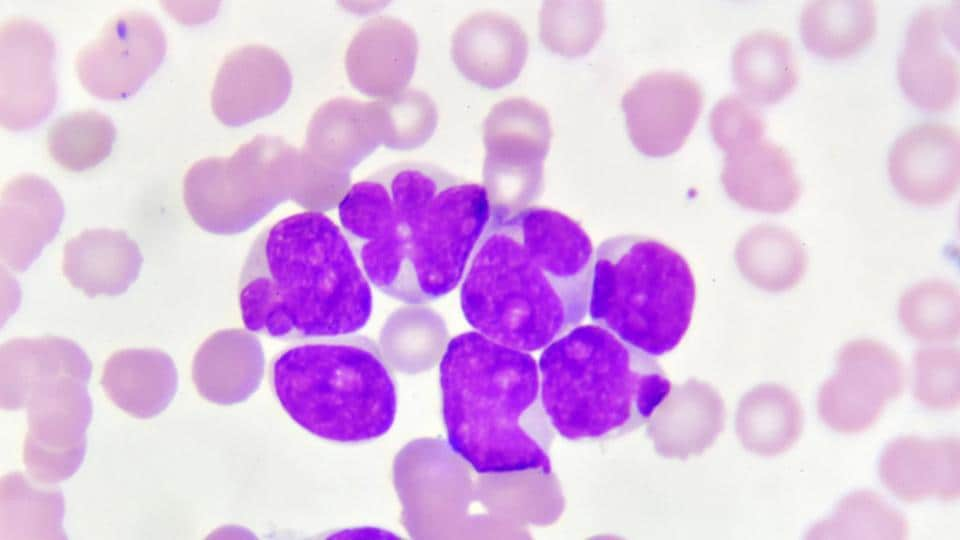 Acute myeloid leukemia,AML,Leukemia