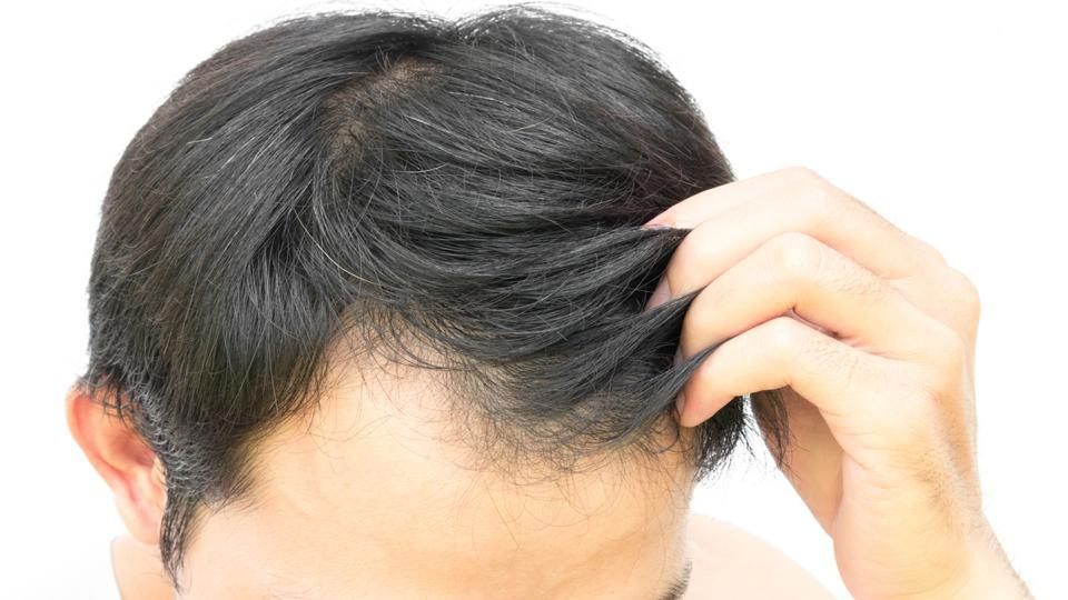 Permalink to Hairstyles For Early Balding