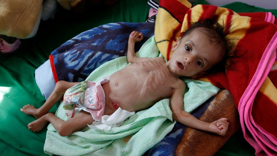 A malnourished Yemeni child receives treatment at a hospital in the capital Sanaa.