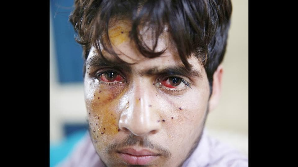 An injured pellet victim at the SMHS hosipital in Srinagar. The hospital that receives only critical patients from 10 districts and caters to the city patients, was overwhelmed with cases of pellet injuries since July 9, a day after Burhan Wani was killed. (Waseem Andrabi / HT Photo)