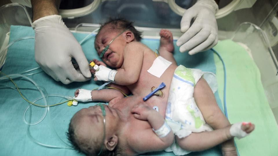 This file photo taken on October 22, 2017 shows then one-day-old Palestinian conjoined twins in an incubator at the nursery at the al-Shifa Hospital in Gaza City. The conjoined twins born in the blockaded Palestinian enclave were separated in a