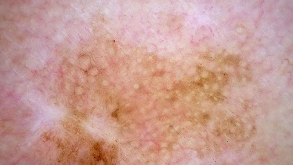 Researchers at Penn State found that melanoma patients who received immunotherapy while taking a specific type of beta blocker lived longer than patients who received immunotherapy alone.