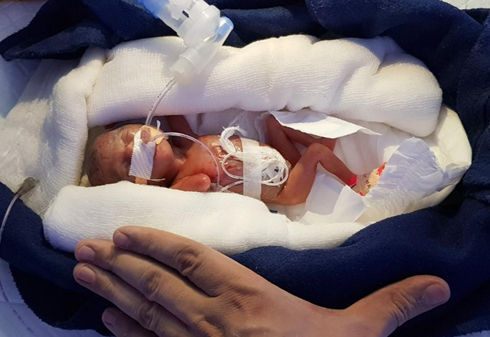 A premature baby girl born weighing 400 grams survived and gained weight, thanks to efforts of doctors at Jivanta Children's Hospital in Udaipur and determination of her parents.
