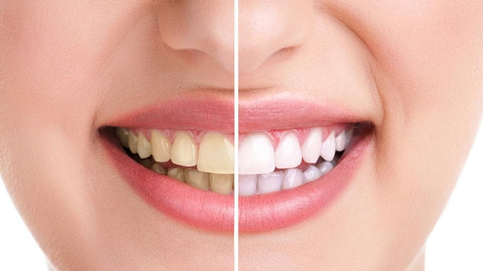 Yellow Teeth,How to get rid of yellow teeth,Daily habits that cause yellow teeth