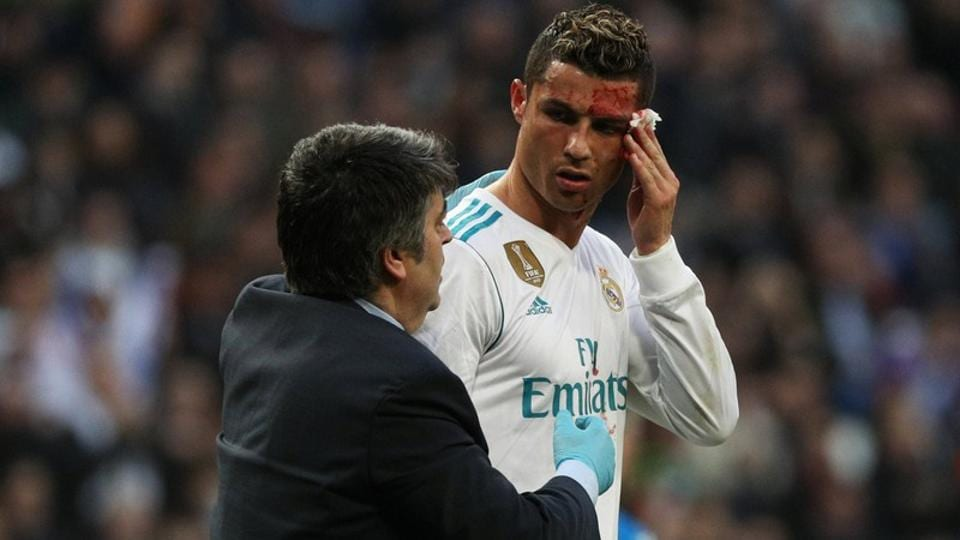 Cristiano Ronaldo checks out his facial injury on a mobile phone