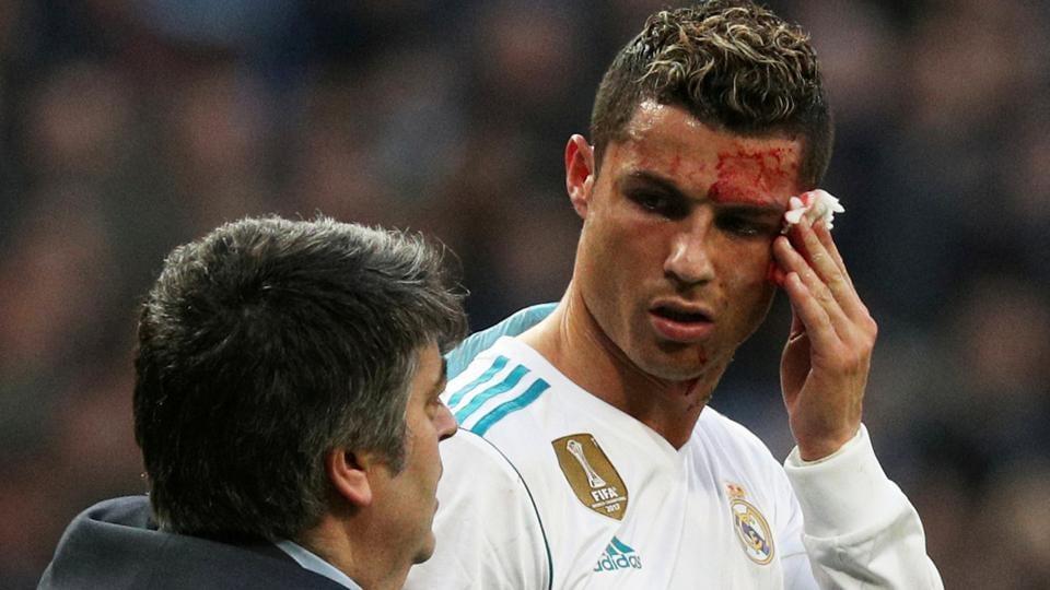 Cristiano Ronaldocristiano Ronaldo Injuryreal Madrid