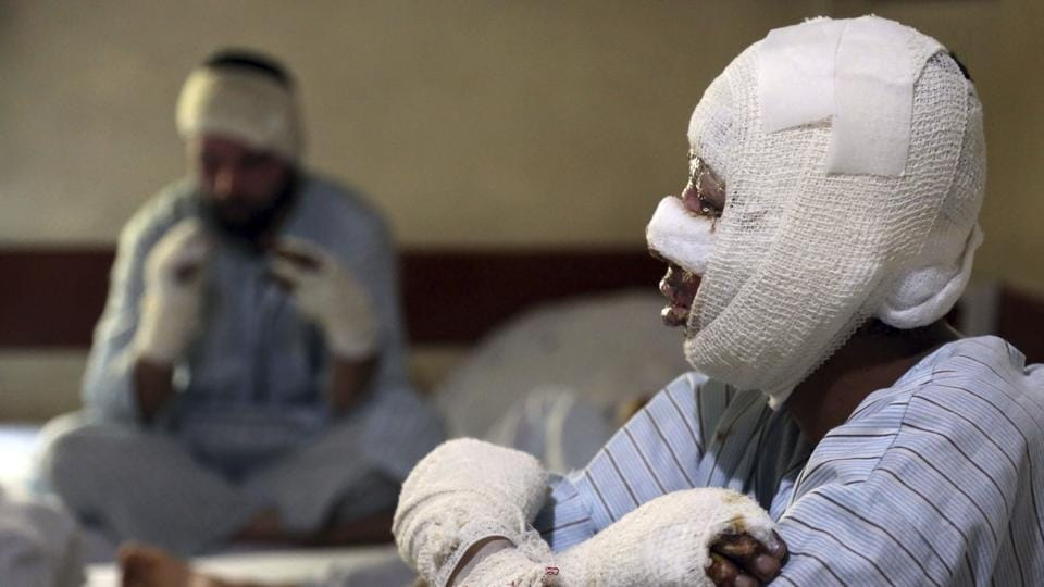 Mohammad Ali, 21, receives treatment at a hospital in Kabul. The Islamic State group in Afghanistan, which calls itself the Khorasan Province, views Shiite Muslims as apostates and has repeatedly attacked the minority and targets linked to neighbouring Iran. (Rahmat Gul / AP)