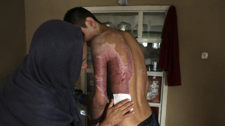 Mehdi, 17, was injured in a suicide attack on a Shiite mosque in October which killed his 14-year-old brother, has his wounds treated at his home in Kabul. His burns required several skin grafts and his vision and hearing have been impaired since. (Rahmat Gul / AP)