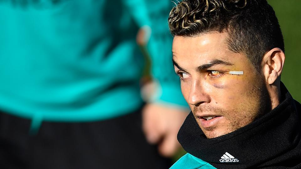 Real Madrid's Cristiano Ronaldo, who was injured during a header at last weekend's La Liga match, attends a training session at Valdebebas sport city in Madrid on Friday, on the eve of the Spanish League football match against Valencia.