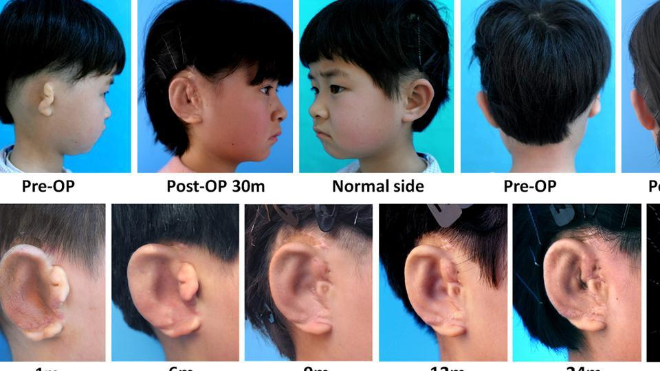 Images of the lab-grown ear grafted on one of the children.