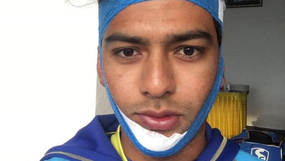 Unmukt Chand overcame a fractured jaw to score a hundred for Delhi in the Vijay Hazare Trophy.