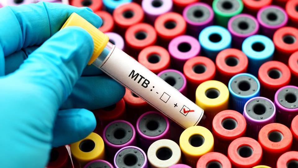 mumbai,bmc,tuberculosis