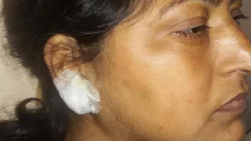 delhi snatching,woman's ear lobe torn,uttam nagar