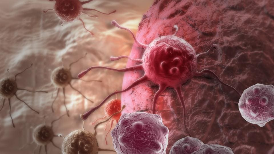 Cancer Cells,Protein,Pancreatic Cancer