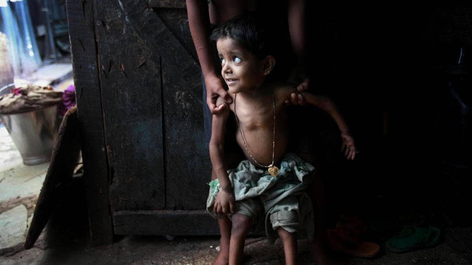 So far the problem of malnutrition has been essentially addressed at the level of the integrated child development services  and is prescriptive in nature