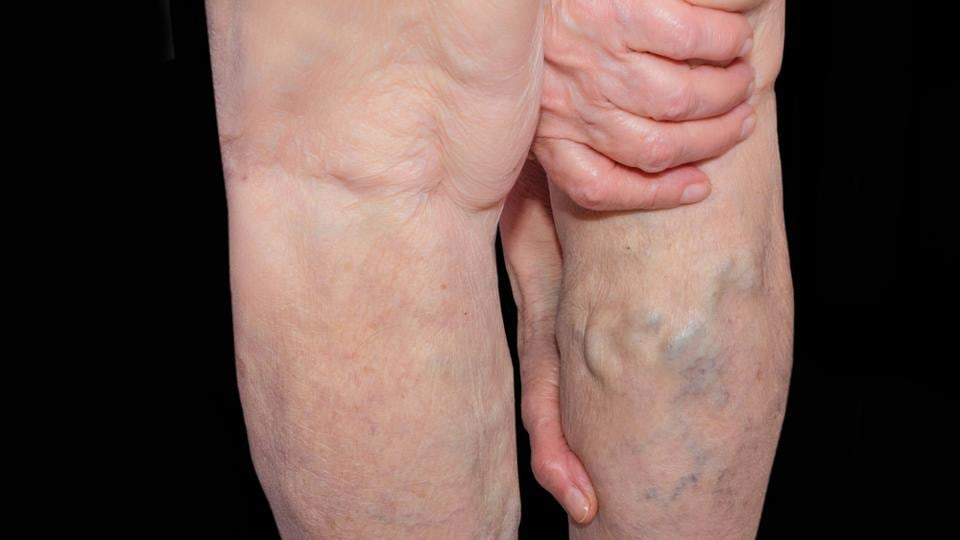 Varicose Veins May Increase Risk Of Blood Clots Lead To Vascular