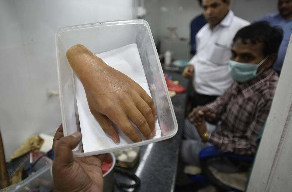 Aided by 3-D printing technology, a private firm in India is making high-tech customised prosthetics for amputees at half the price of imported ones that cost upwards of ₹1.5 lakh. Offering an alternative to imported prosthetic hands, the company is also launching an indigenously developed myoelectric prosthetic hand with thumb rotation and functions such as gripping objects. (Raj K Raj / HT Photo)