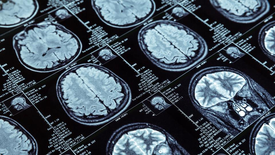 Brain scans,Psychiatric disorders,Neurological disorders