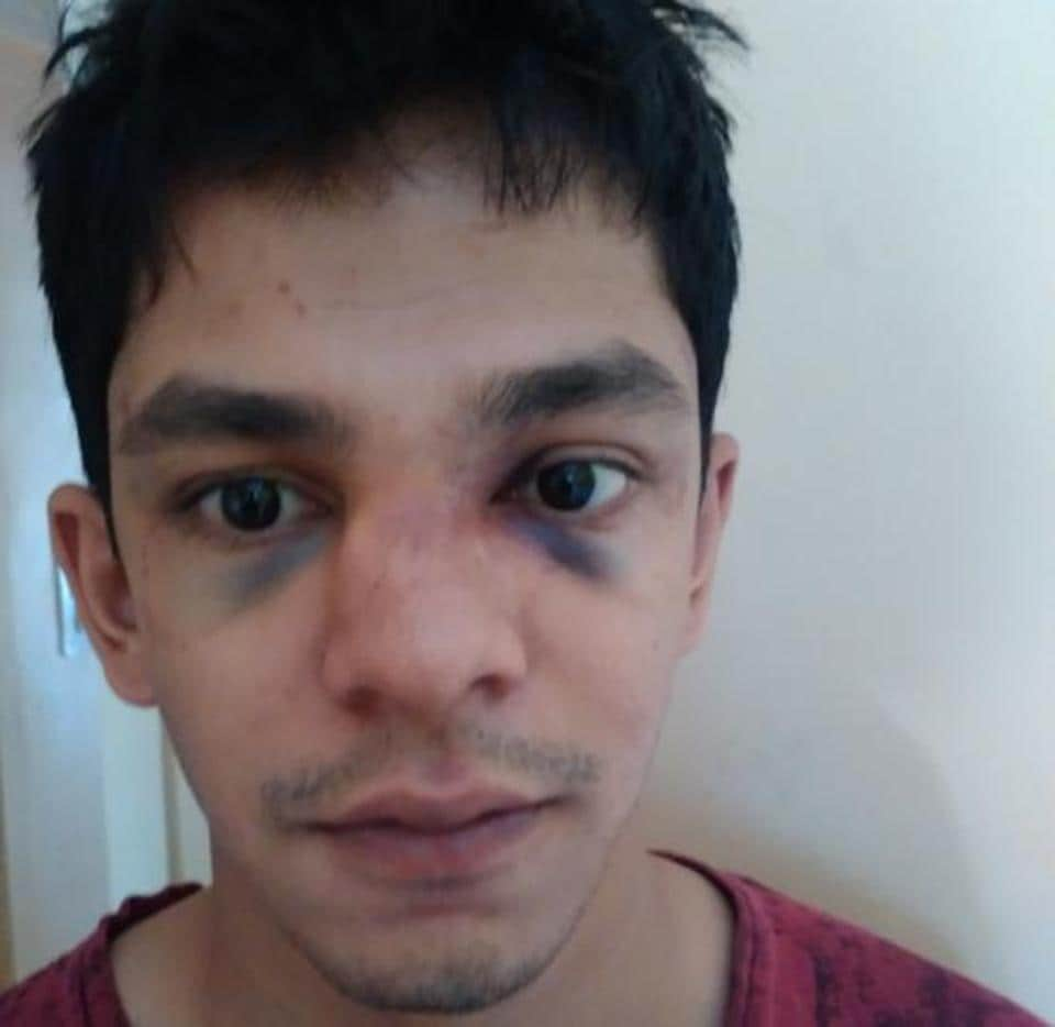 Varun was taken to Medipoint hospital by another car owner, where it was found that he had sustained a nose fracture.