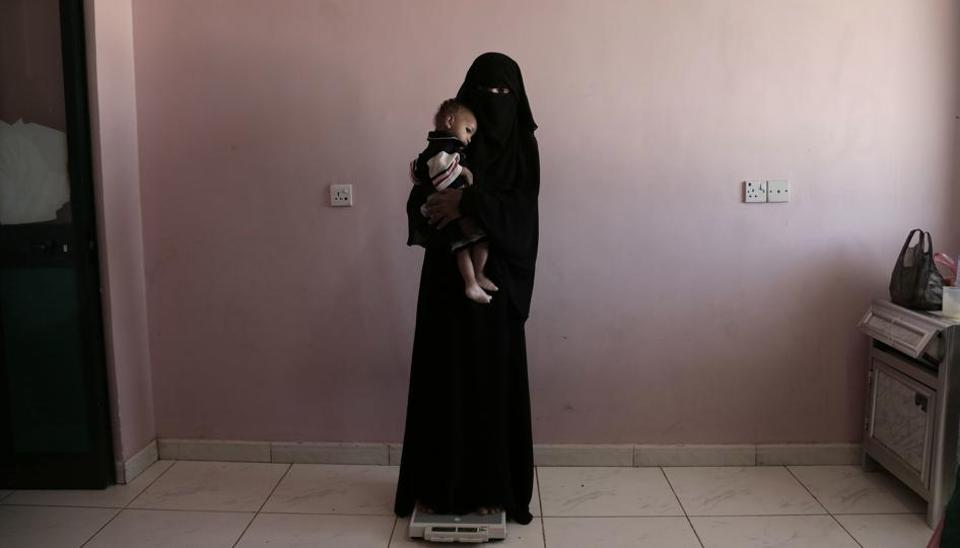 Umm Mizrah, a 25-year-old Yemeni woman, holds her son Mizrah on a scale in Al-Sadaqa Hospital in the southern Yemen city of Aden.