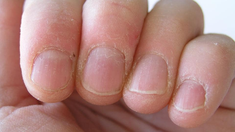 Skin Peeling Around Nails Due To Dryness Getty Images IStockphoto