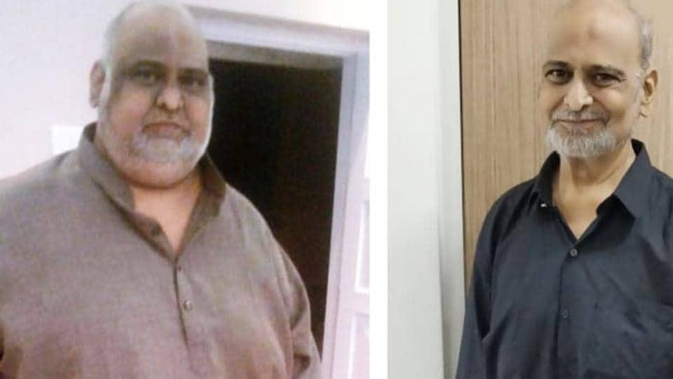 Hyderabad,bariatric surgery,Dr Boora Narsaiah Goud