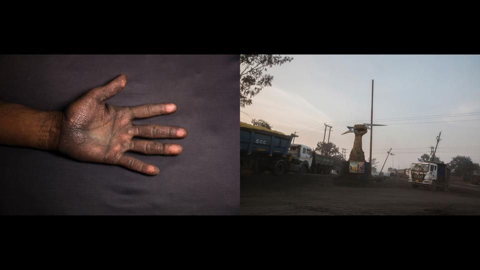 "Left: Vimlesh Sawhney's hand, Chilkadand, Right: Company logo bearing a fist at the coal truck depot of NCL Jayant Coal Mines. ""Look what my hands have become! When I come home after driving, I wash my hands repeatedly but within minutes, they're the same. All of us who work in the mines cough constantly. Whatever I'm earning goes into medicines anyway. My future? When my body stops delivering, no company will keep us"" — Vimlesh Sawhney, 40, open-cast mine driver.  (Ruhani Kaur)"