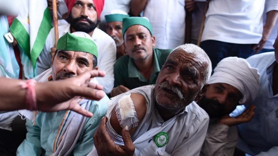 A farmer shows injuries sustained during police action. BKU leaders have also demanded that diesel tractors should be kept out of the ambit of National Green Tribunal's directions that mandate the removal of all diesel vehicles older than 10 years from the National Capital Region. (Burhaan Kinu / HT Photo)