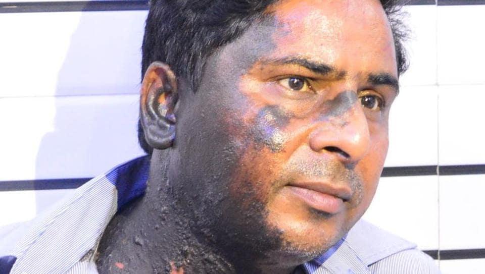 Urdu poet Hashim Firozabadi was attacked in Firozabad.