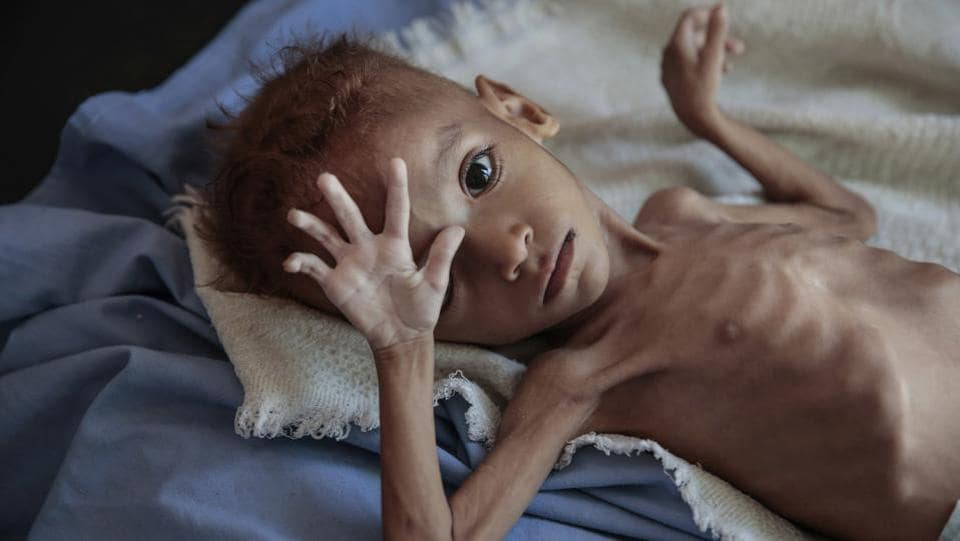 A severely malnourished boy rests on a hospital bed at the Aslam Health Center, Hajjah, Yemen. (Hani Mohammed / AP)