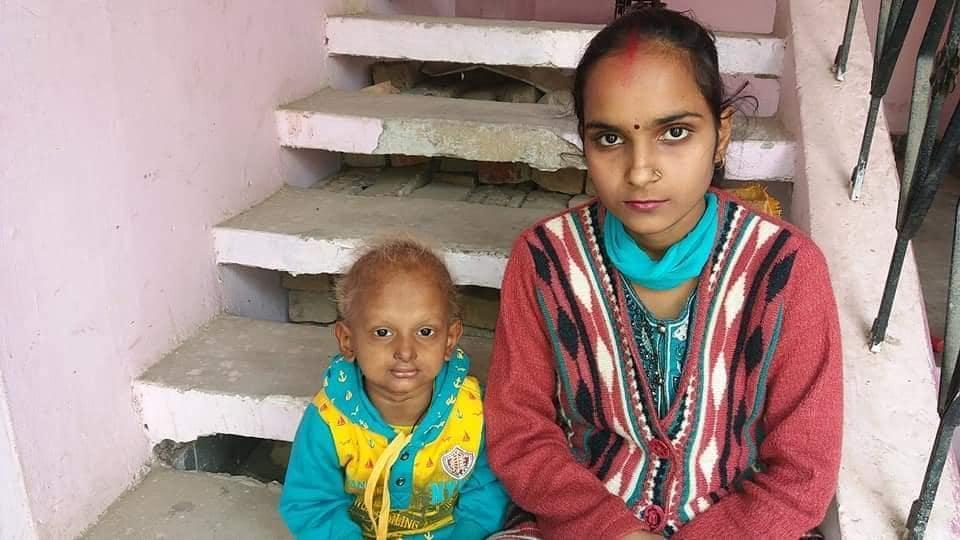 Basti woman,Uttar Pradesh,Paa-nacea
