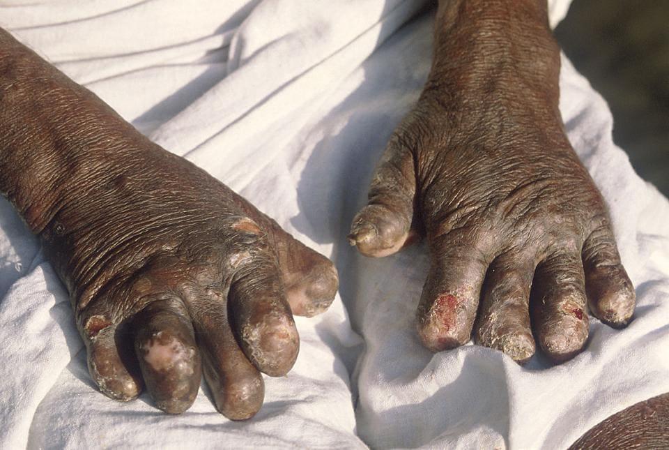Leprosy,Mumbai leprosy cases,multibacillary