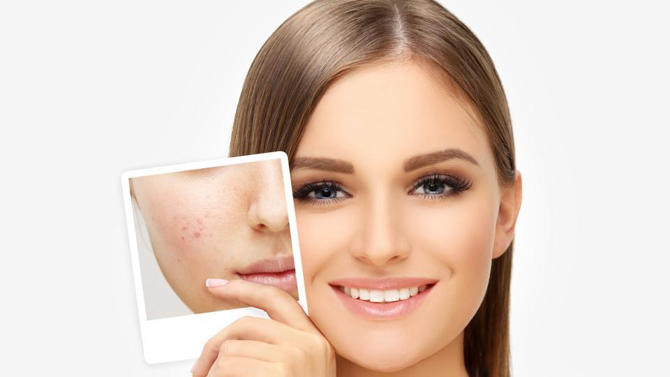 Acne,Acne Scars,How to deal with acne scars