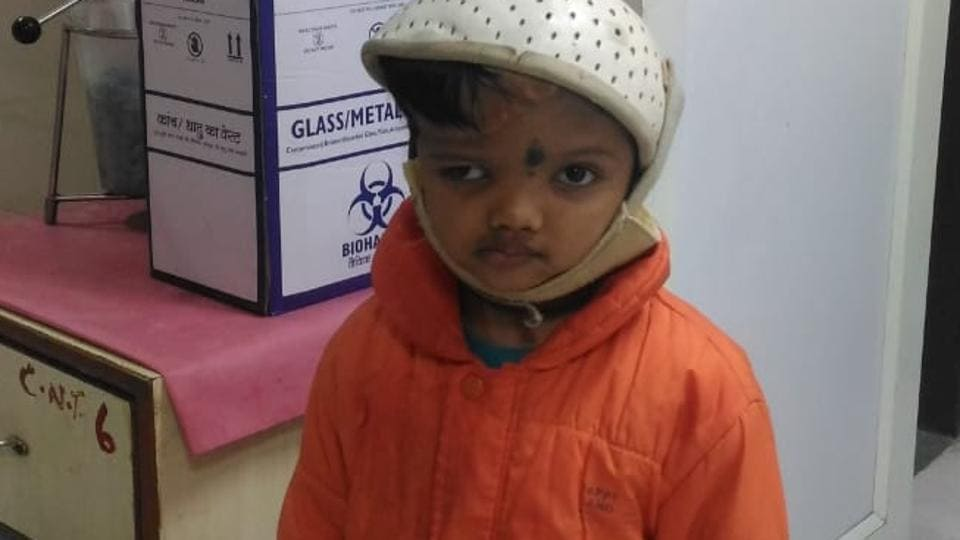 Jagga (in pic) and his twin brother Baliya were born with joined heads. They were operated upon at AIIMS in 2017 to separate them.