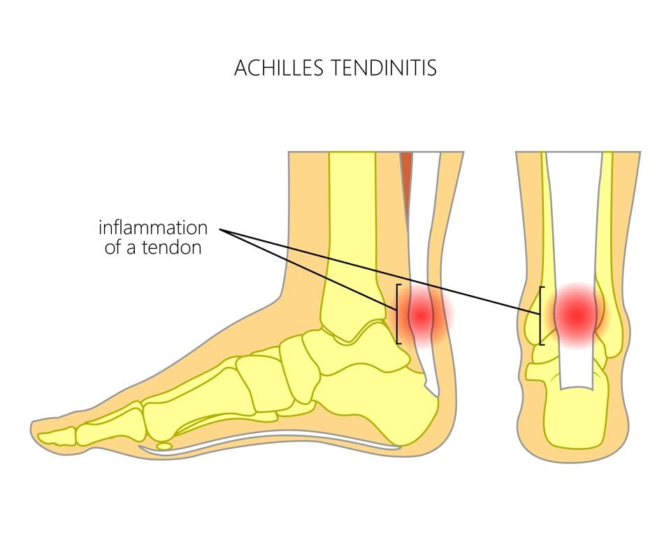 Runners who do a lot of hill running are particularly prone to Achilles tendon issues