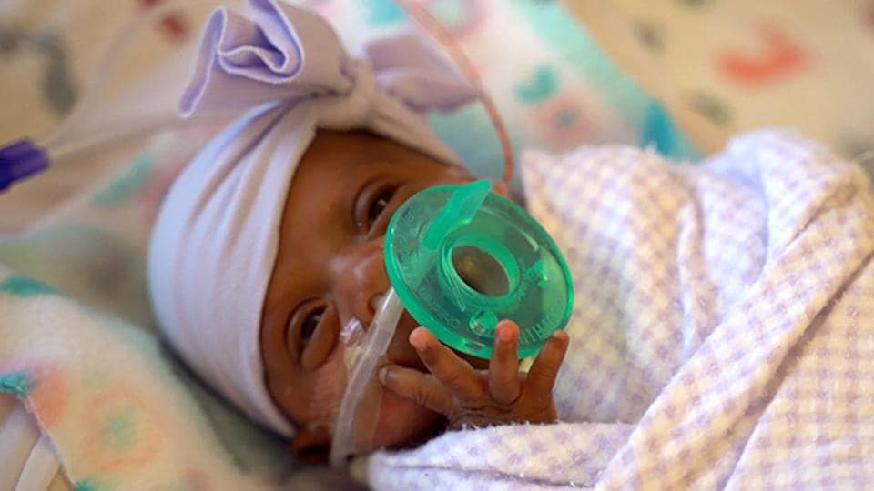 This March, 2019 photo provided by Sharp HealthCare in San Diego shows a baby named Saybie. Sharp Mary Birch Hospital for Women & Newborns said in a statement Wednesday, May 29, 2019, that Saybie, born at 23 weeks and three days, is believed to be the world's tiniest surviving baby, who weighed just 245 grams (about 8.6 ounces) before she was discharged as a healthy infant. She was sent home this month weighing 5 pounds (2 kilograms) after nearly five months in the hospital's neonatal intensive care unit. (Sharp HealthCare via AP)