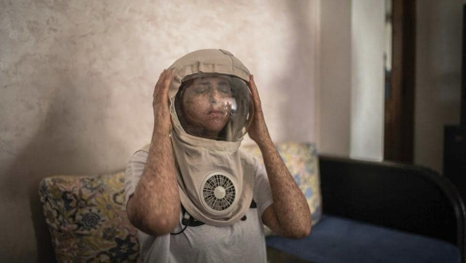 Fatimazehra El Ghazaoui, 27, a woman affected by a rare disorder called xeroderma pigmentosum, or XP, puts on a protective mask she wears outside on sunny days, in her home in Mohammedia, near Casablanca, Morocco. The disorder affects about 1 in 10,000 people in North Africa — more than 10 times the rate in Europe and about 100 times the rate in the United States, according to Dr. Kenneth Kraemer, who researches XP at the U.S. National Institutes of Health. (Mosa'ab Elshamy / AP)