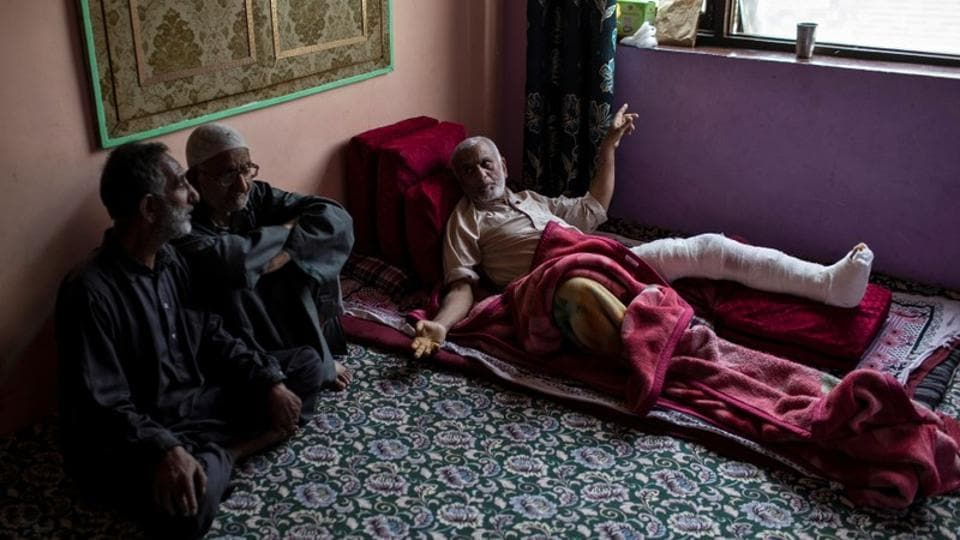 "Mohammad Yousef, a 61-year-old man who was injured by pellets fired by security, rests inside his house in Anchar neighbourhood. ""I was coming back to my neighbourhood after prayers. I thought I was safe as I am an old man. But they didn't even spare me,"" said Yousef while lying with his leg in bandages. (Danish Siddiqui / REUTERS)"