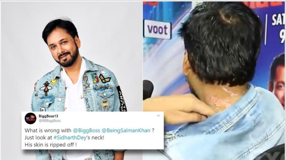 Bigg Boss 13: Sidharth Dey shows his wounds to the camera.