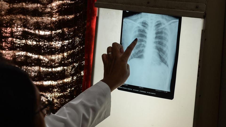 A doctor checks the chest X-ray of a patient in the tuberculosis (TB) department of the government-run Osmania General Hospital in Hyderabad. Scientists said they are closing in on a vaccine for tuberculosis, the world's deadliest infectious disease that claimed some 1.5 million lives last year. (Noah Seelam / AFP)
