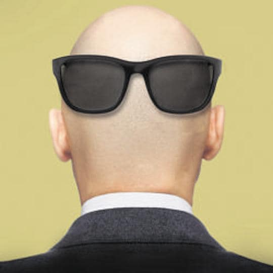 bald shaming needs to be stopped