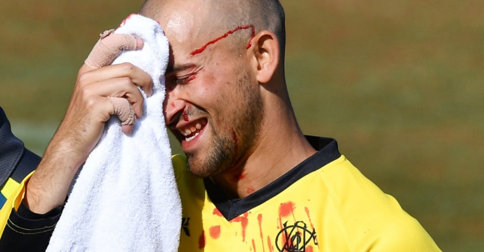 Ashton Agar gets bloodied during Marsh Cup.
