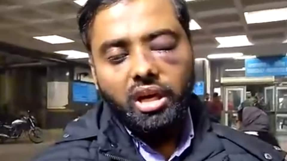 Mohammad Minhajuddin who lost vision in one eye allegedly due to police action at the Jamia Millia Islamia library. (TV video grab)