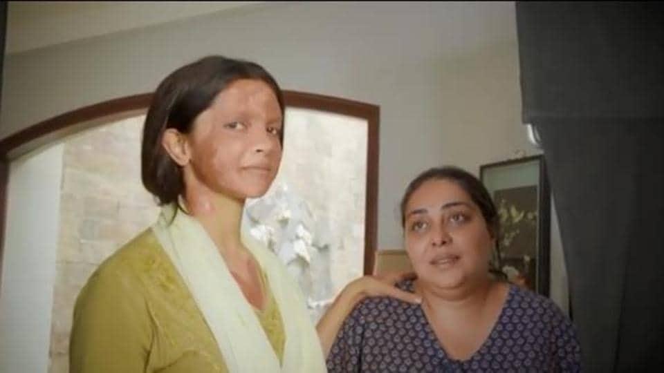 Deepika Padukone plays an acid attack survivor in Chhapaak.